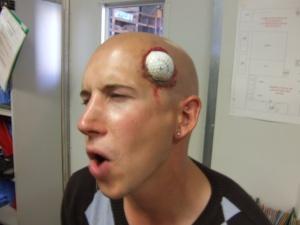 Golfclub-Syndrom - Stupidedia